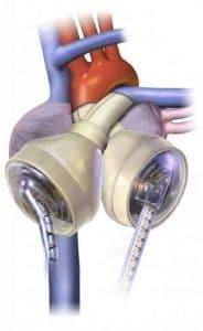 cœur artificiel medtech SynCardia