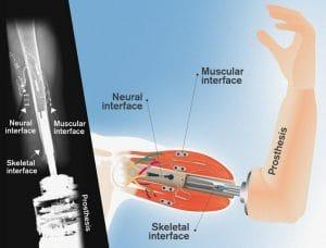 Schéma de la prothèse neuro-musculo-squelettique suédoise