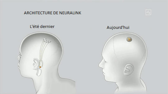 puce neuralink en image
